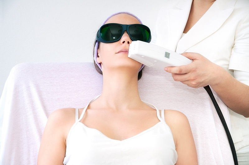 A prolonged treatment of laser hair removal